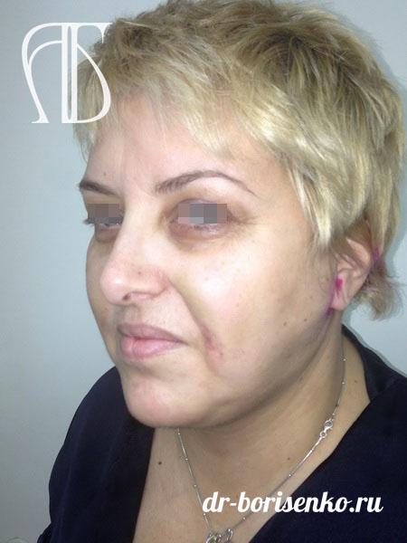 Подтяжка средней зоны лица после