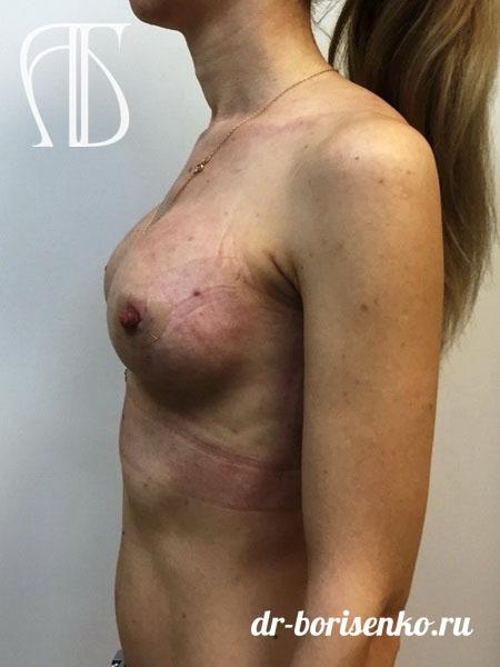 увеличение груди в москве после