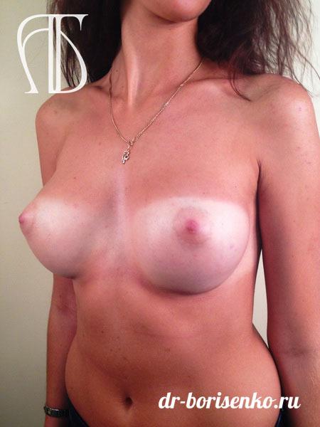 увеличение груди под грудью после