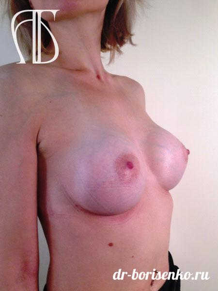 эффективное увеличение груди после