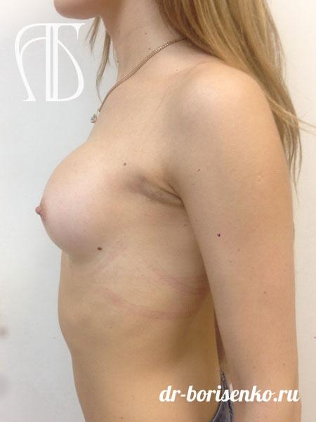 увеличение груди для девушки после