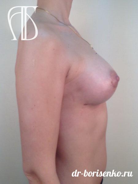 увеличение груди под мышцу после