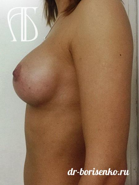 увеличение груди круглыми имплантами фото после