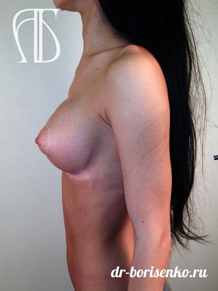 клиники москвы по увеличению груди после