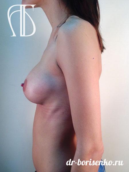 увеличение груди форум фото после