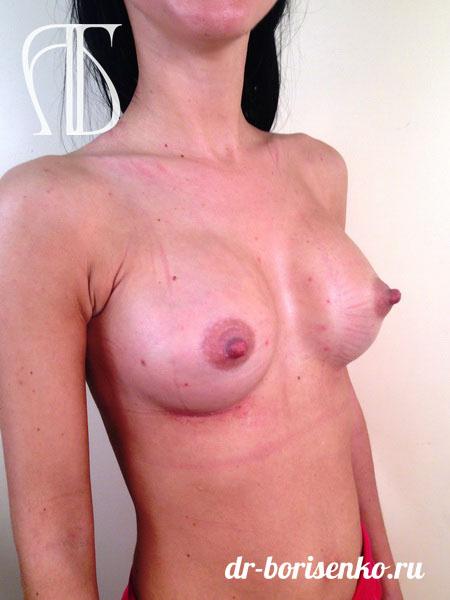 примеры увеличения груди после
