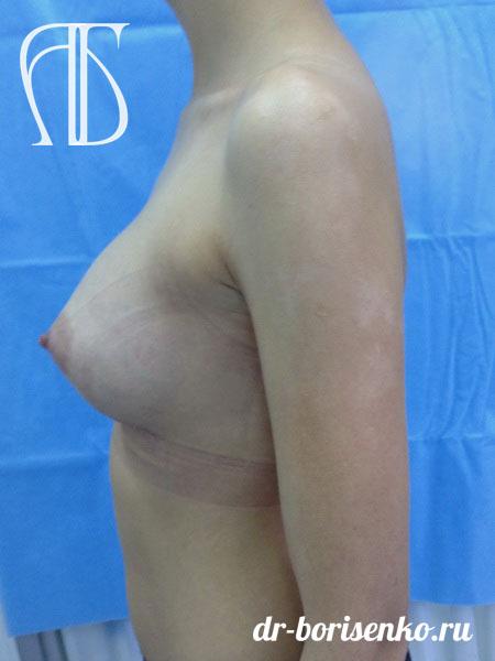 увеличение и подтяжка груди фото после