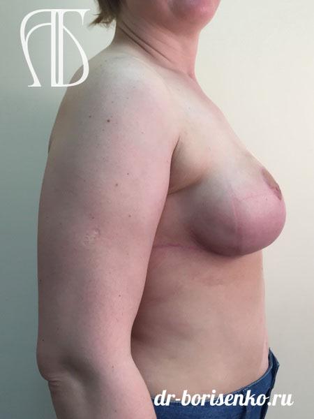 операция по уменьшению грудных желез после