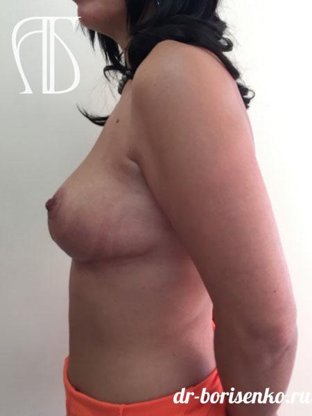 подтяжка груди москва после