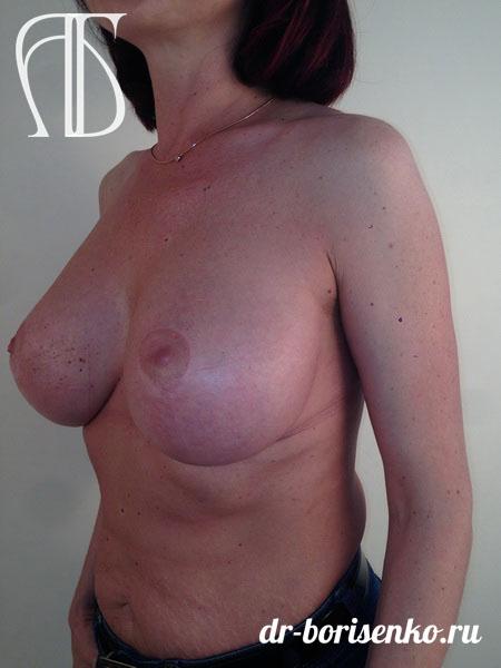 мастопексия после