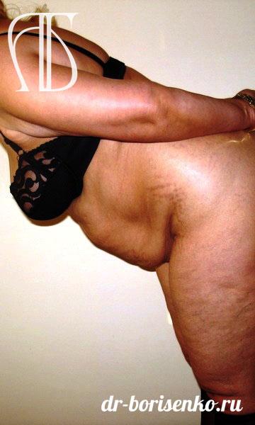 пластическая хирургия абдоминопластика до