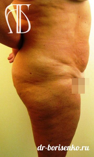вертикальная абдоминопластика до