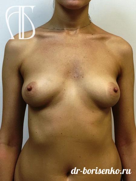 операция по увеличению груди до