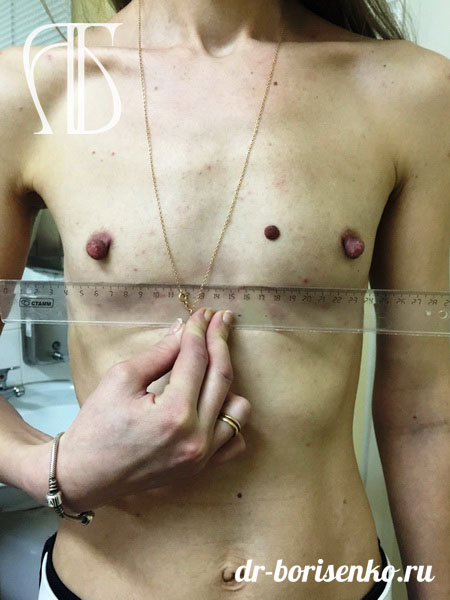 увеличение размера груди до