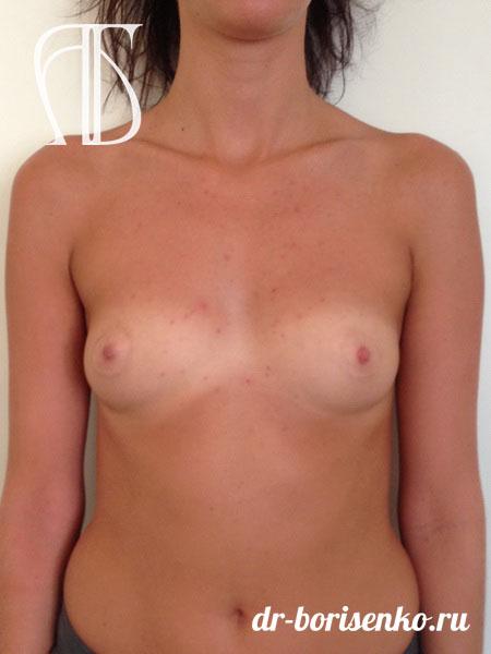 первое увеличение груди до