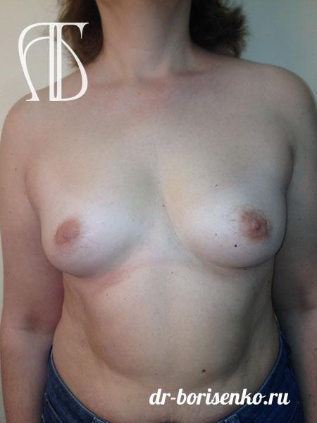 фото до операции увеличения груди
