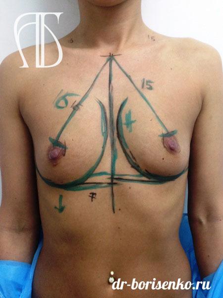 увеличение груди под железу до