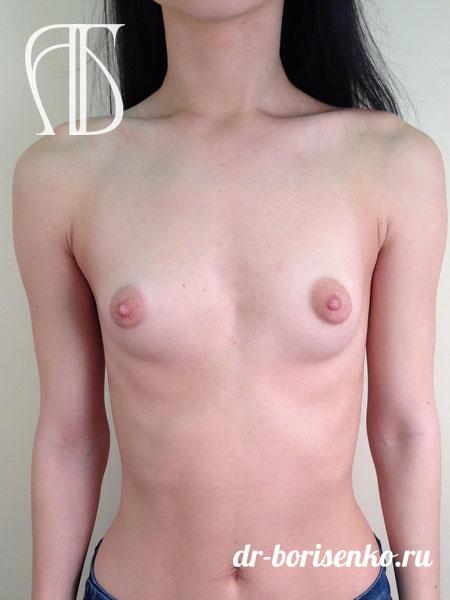 операция по увеличению груди в москве до