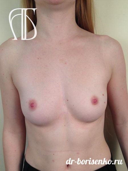 увеличение груди эндоскопическим методом до
