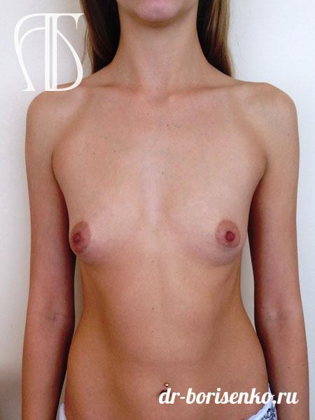 швы после операции по увеличению груди до