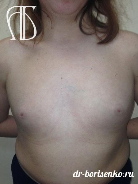 Эндопротезирование груди до