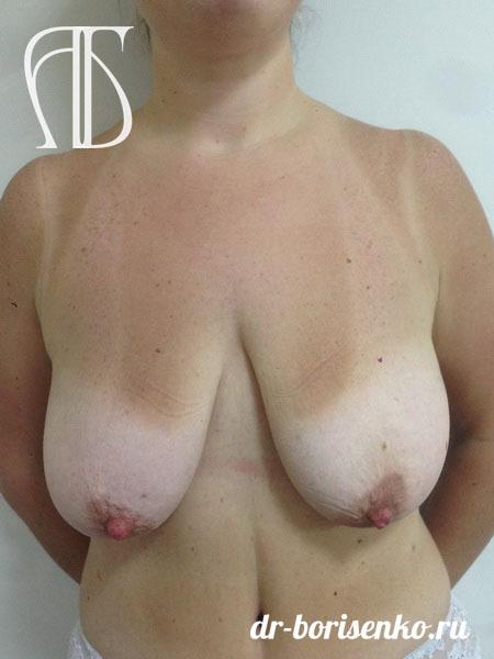 уменьшение груди клиники до