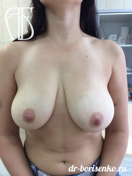 хирургическое уменьшение груди до