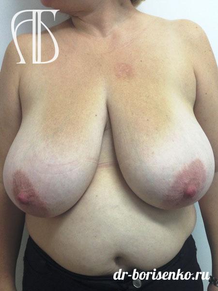 способы уменьшения груди до