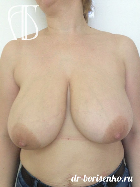операция редукционная маммопластика до