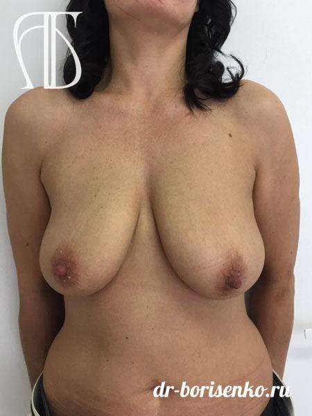 подтяжка груди без имплантов до