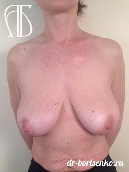 вертикальная подтяжка груди до