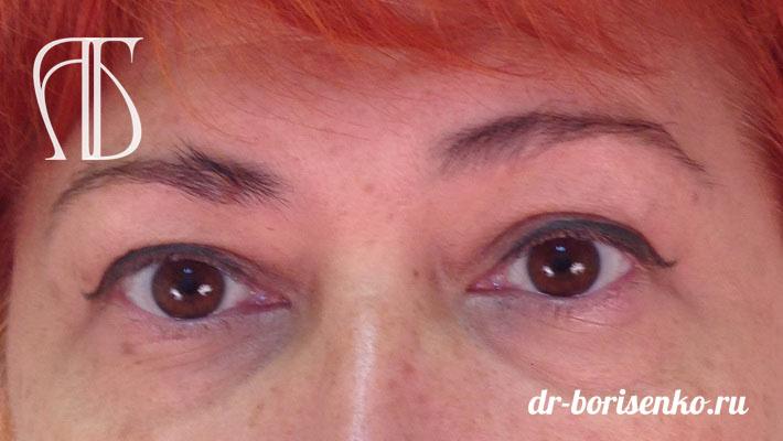 блефаропластика глаз до