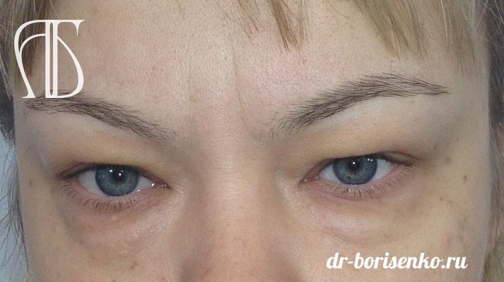 глаза до блефаропластики