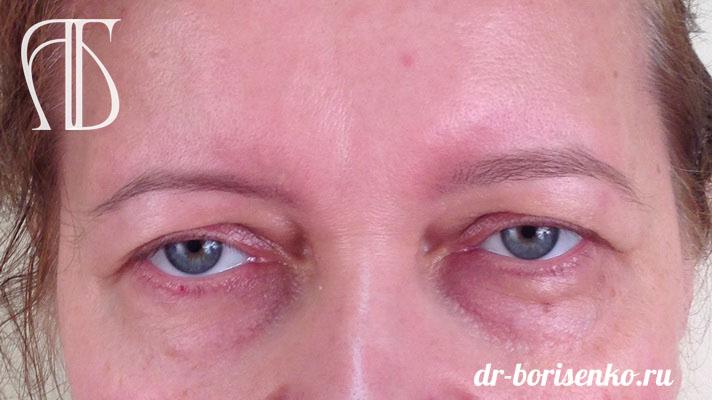 блефаропластика разрез глаз до