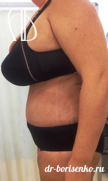 косметическая операция на живот после