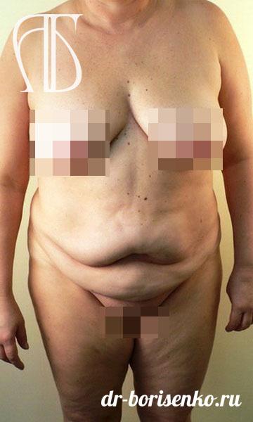 Хирурги по абдоминопластике до