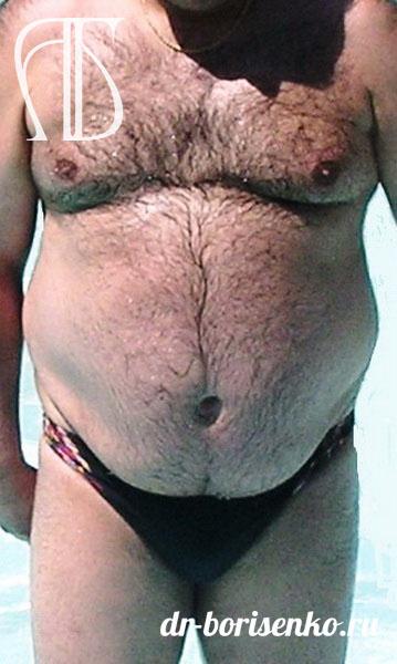 абдоминопластика для мужчин до