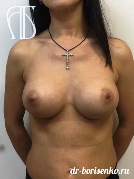 операция по увеличению груди после