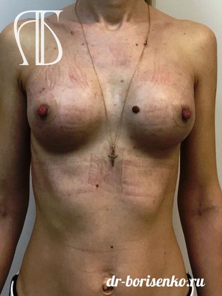 увеличение размера груди после