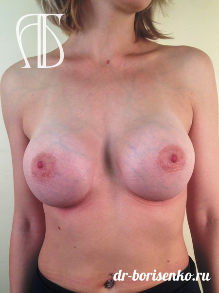 увеличение груди 2 размер после
