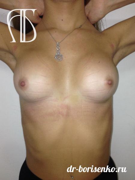 процедура увеличения груди после