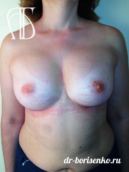 фото после операции увеличения груди