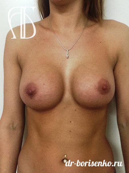 увеличение груди под железу после