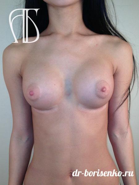 операция по увеличению груди в москве после