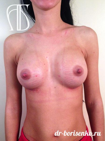 фото увеличение груди с размером после