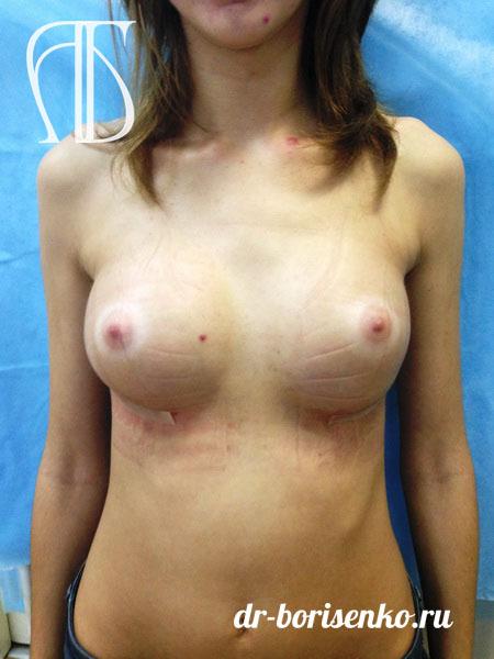 увеличение груди в Иванове после