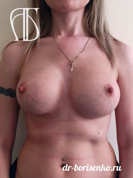 увеличение груди через ореол после