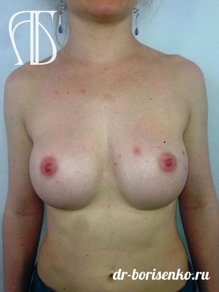 увеличение груди эндоскопическим методом после