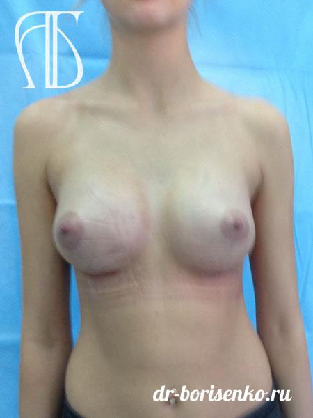 швы после операции по увеличению груди после