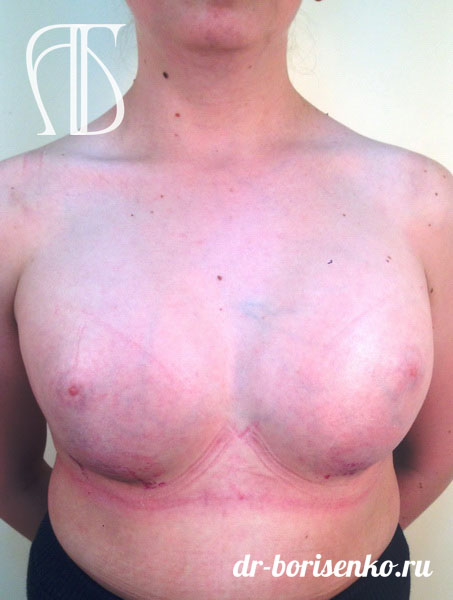 Эндопротезирование груди после